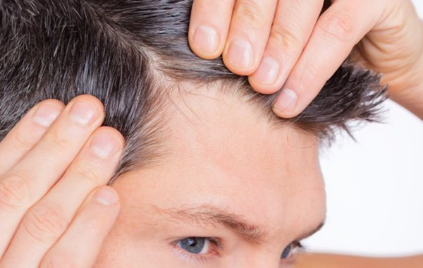 How to Treat and Prevent Thinning Hair Naturally