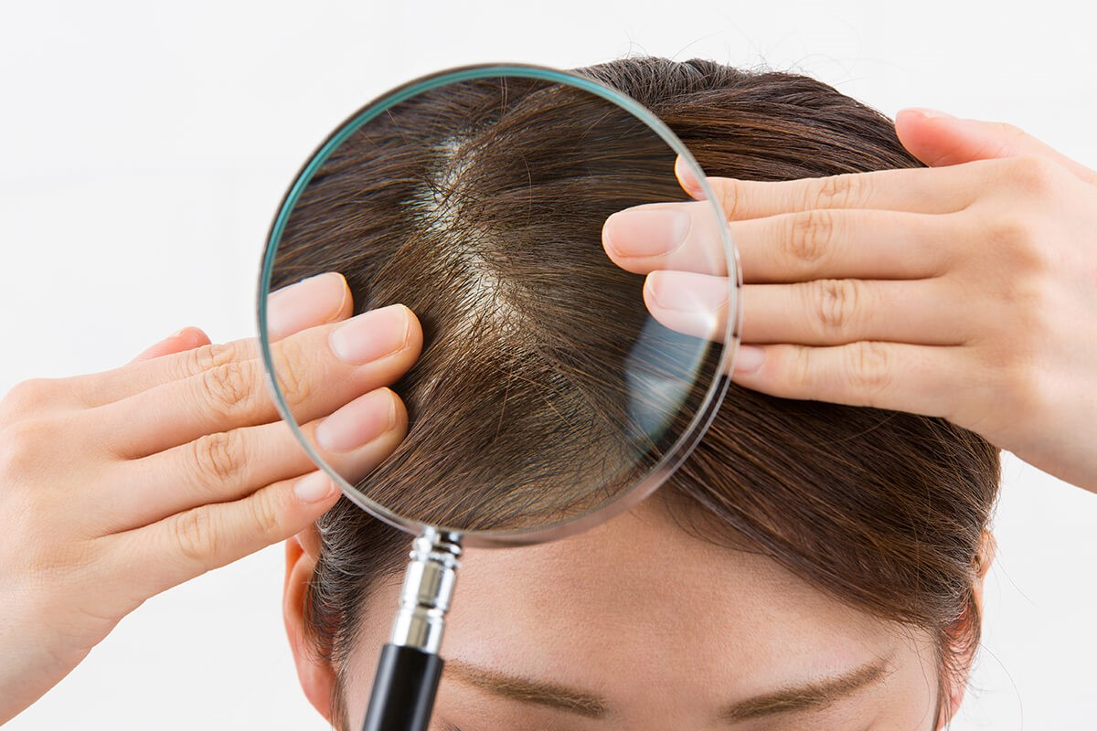 dry, flaky scalp