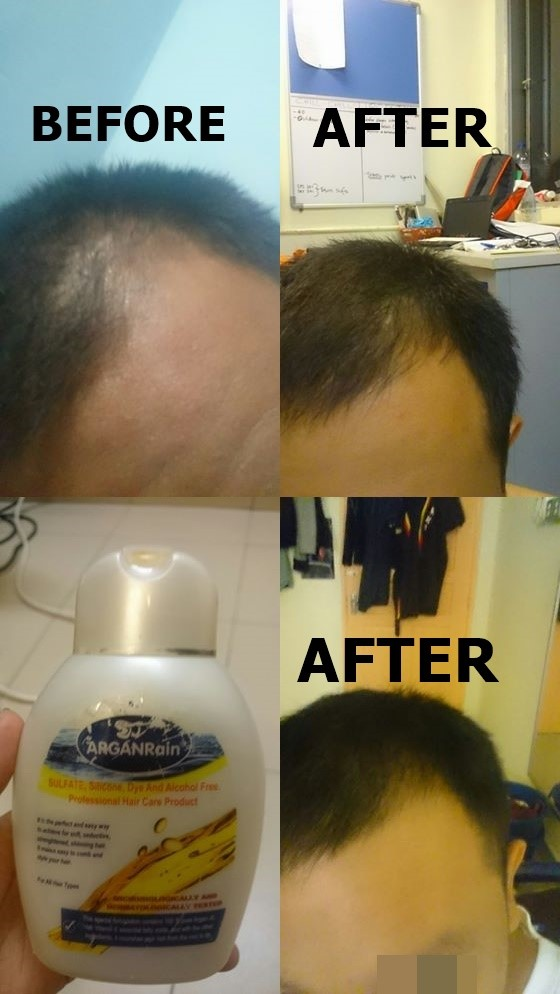 arganrain hair loss products