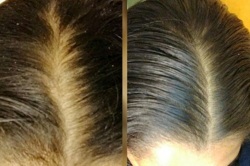 arganrain-shampoo-before-after-dandruff-review