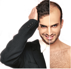 hair-loss-best-treatment